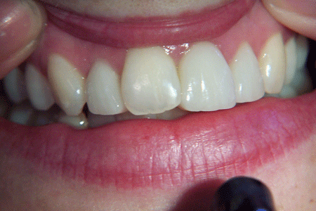 before-and-after-veneers-100_3186