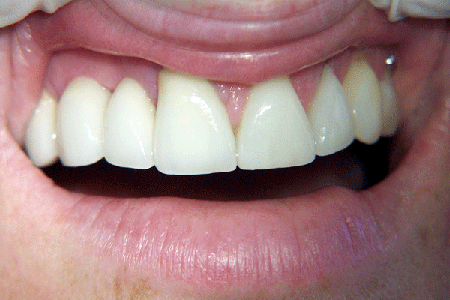 photo-showing-before-after-dental-bridge-100_3195-600x400