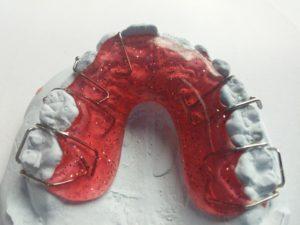 removable brace (2)