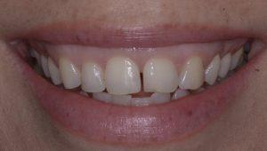 front teeth gap