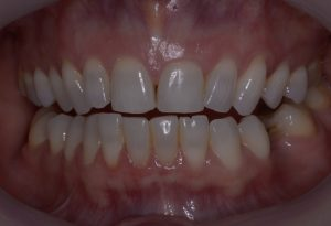 Clear Aligner (before treatment) case 1
