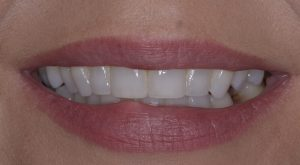 Clear aligner (post treatment) case 2