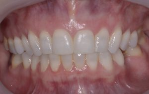 Clear aligner (after treatment) case 1